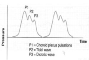 ICP waveform P123